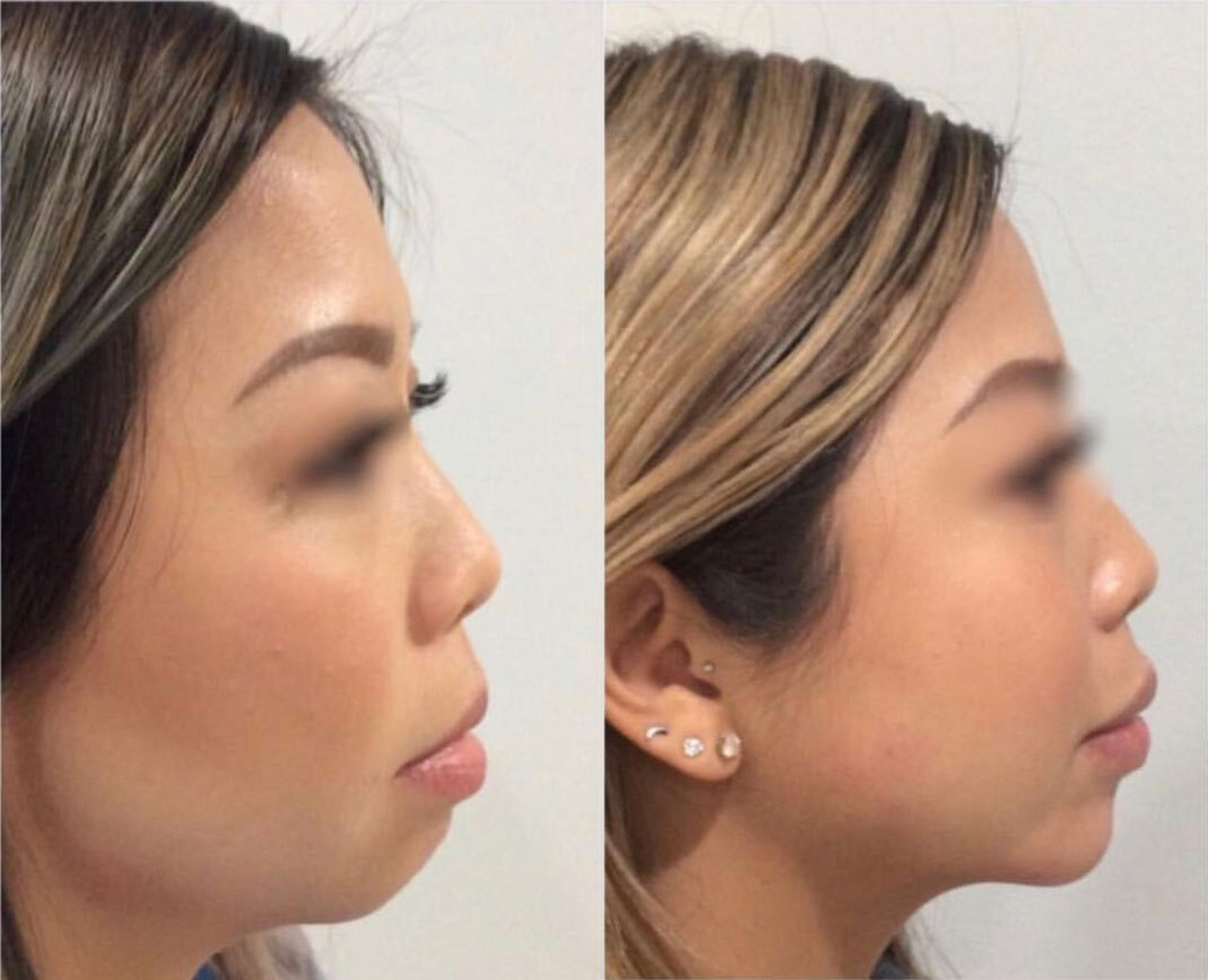Dermal Fillers Case 11 Before & After Right Side | Sacramento, CA | Destination Aesthetics
