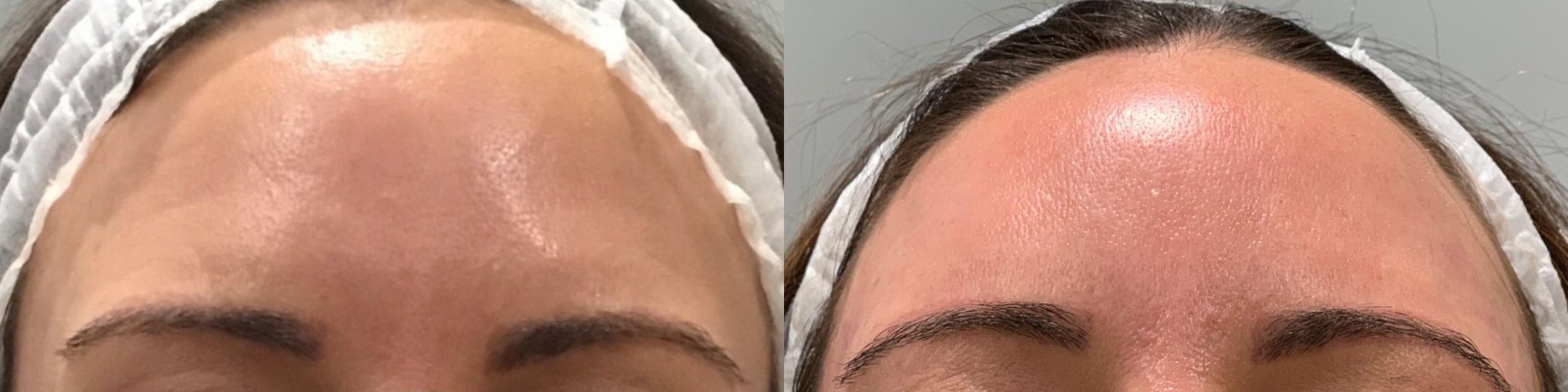 Dermal Fillers Case 13 Before & After Forehead | Sacramento, CA | Destination Aesthetics